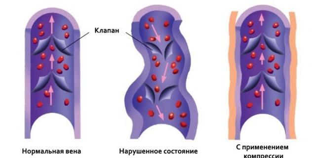 Выбор чулок от варикоза у беременных женщин
