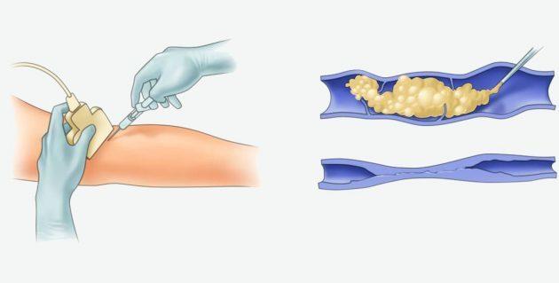 Лечение варикоза без операции (безоперационное): народная медицина, физиотерапия, компрессионные методы