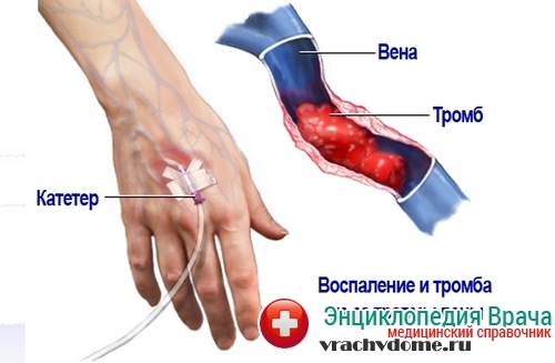 Лечение тромбоза глубоких вен нижних конечностей народными средствами