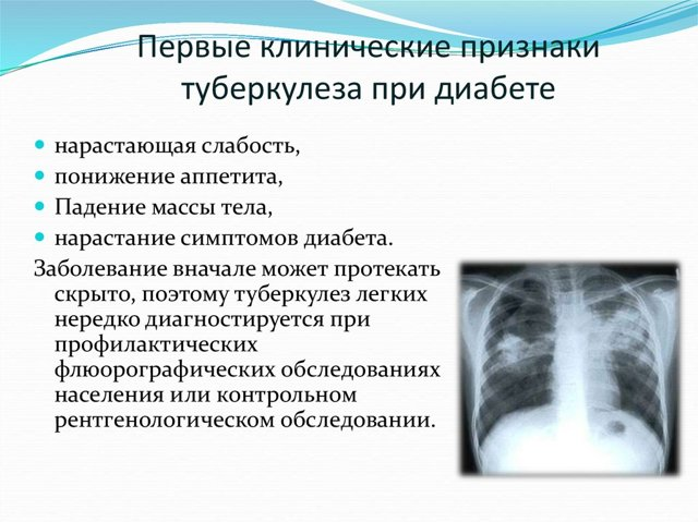 Туберкулез и диабет: симптомы, причины, лечение