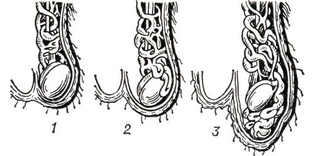 Степени варикоцеле