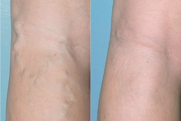 clean legs от варикоза: отзывы, цена, состав и стоит ли покупать