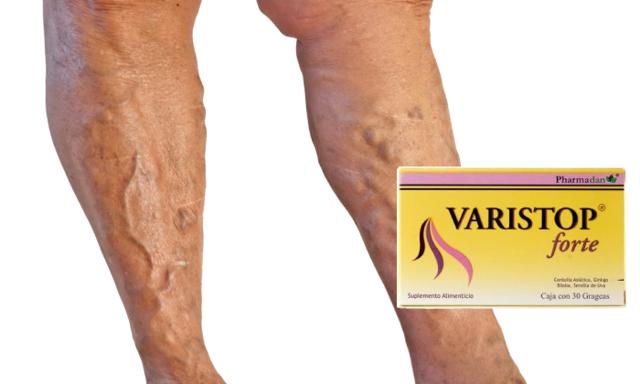 varistop от варикоза: отзывы, цена, состав и стоит ли покупать