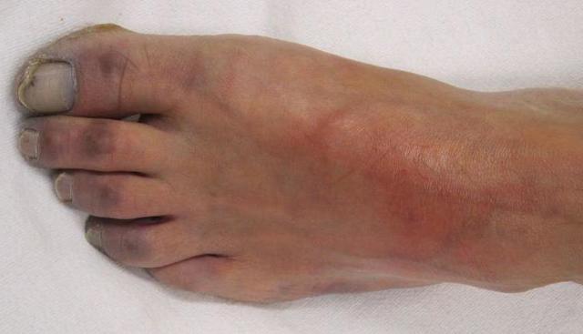 Гангрена при диабете сахарном (ног, нижних конечностей, пальца, пятки): фото, начальная стадия, лечение, ампутация, признаки, сколько живут, прогноз
