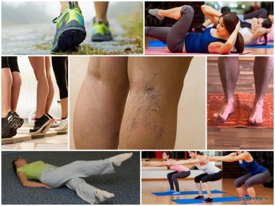 Зарядка при варикозе ног - лечебная гимнастика