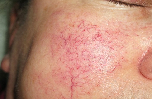 Маски от купероза: домашние рецепты (глиняные, картофельные), аптечные средства, профилактические маски для чувствительной и сухой кожи, отзывы