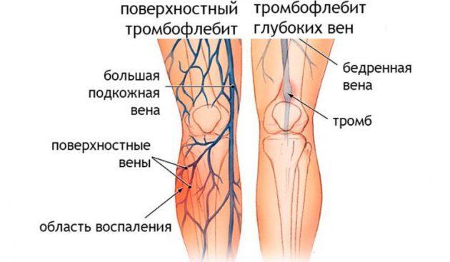 Варикозное расширение вен на ногах: причины, симптомы (как выглядит), лечение (медикаменты, хирургия, народные средства), профилактика, осложнения