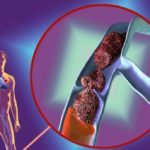 Внутренний варикоз: симптомы и лечение на ногах