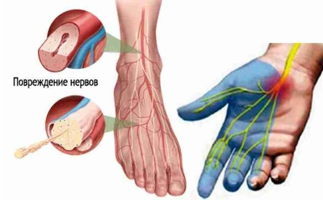 Диабетическая нейропатия конечностей нижних и верхних: лечение, симптомы, препараты, МКБ-10, народные средства