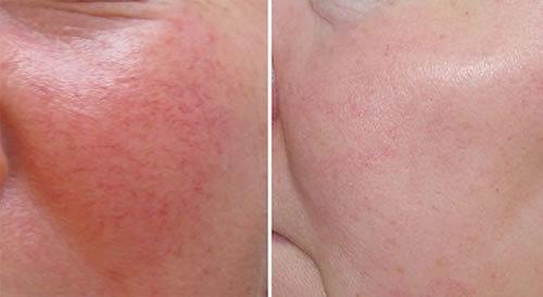 Купероз на лице: симптомы, причины, лечение (медикаменты, косметология, салонный уход), профилактика (питание), осложнение