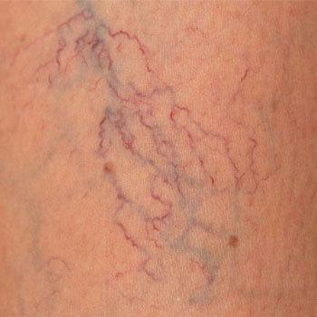 variol - пенка от варикоза: отзывы, цена, состав и стоит ли покупать