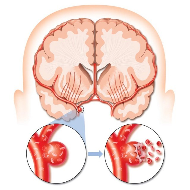 Инсульт при диабете сахарном 2 типа ишемический: диета, что можно, лечение, прогноз, кома, отказ почек