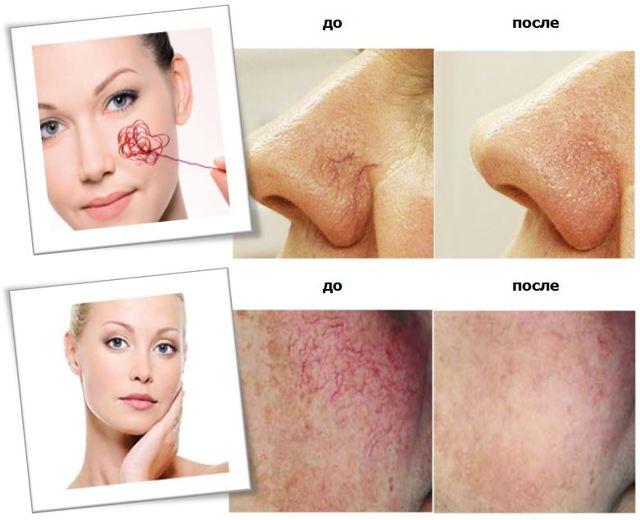 Удаление купероза на лице