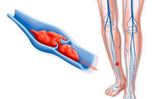 Антицеллюлитный массаж при варикозе: можно ли делать (гидромассаж, лимфодренаж, самомассаж, вакуумный, медовый), особенности проведения у беременных