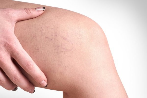 Варикоз на ногах у женщин: причины, симптомы, диагностика, стадии, лечение (медикаментозное, оперативное, народное), профилактика, осложнения