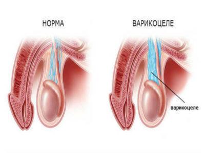 Варикоцеле у мужчин: лечение (операция), симптомы (фото), что это такое, причины, можно ли вылечить без операции