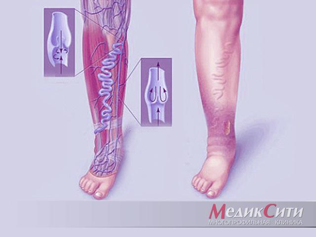 Чем опасна варикозная болезнь вен нижних конечностей у мужчин и женщин (хвн, тромбоэмболия, язвы, тромбофлебит, отеки, кровотечения, тромбоз, флебит)