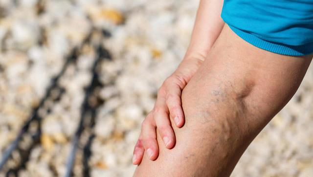 Зуд при варикозе: почему чешутся ноги, лечение (чем снять)