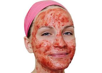 Средства от купероза на лице
