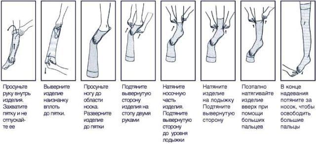 Медицинские колготки от варикоза