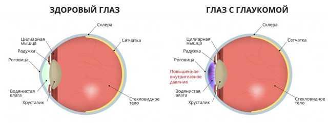 Глазные капли при диабете сахарном 2 и 1 типа: список, профилактика