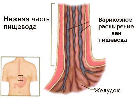 Осложнения варикозного расширения вен пищевода